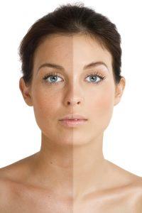 Opálení vzniká díky pigmentu v kůži, který ji chrání