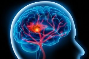 Cévní mozková příhoda je akutní stav, vyžaduje neodkladnou lékařskou pomoc.