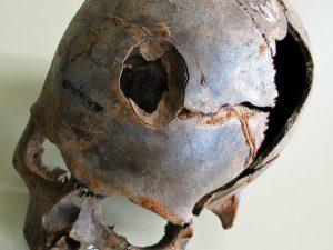 Fraktura lebky. Vše nasvědčuje tomu, že zranění vzniklo úderem tuhého předmětu.