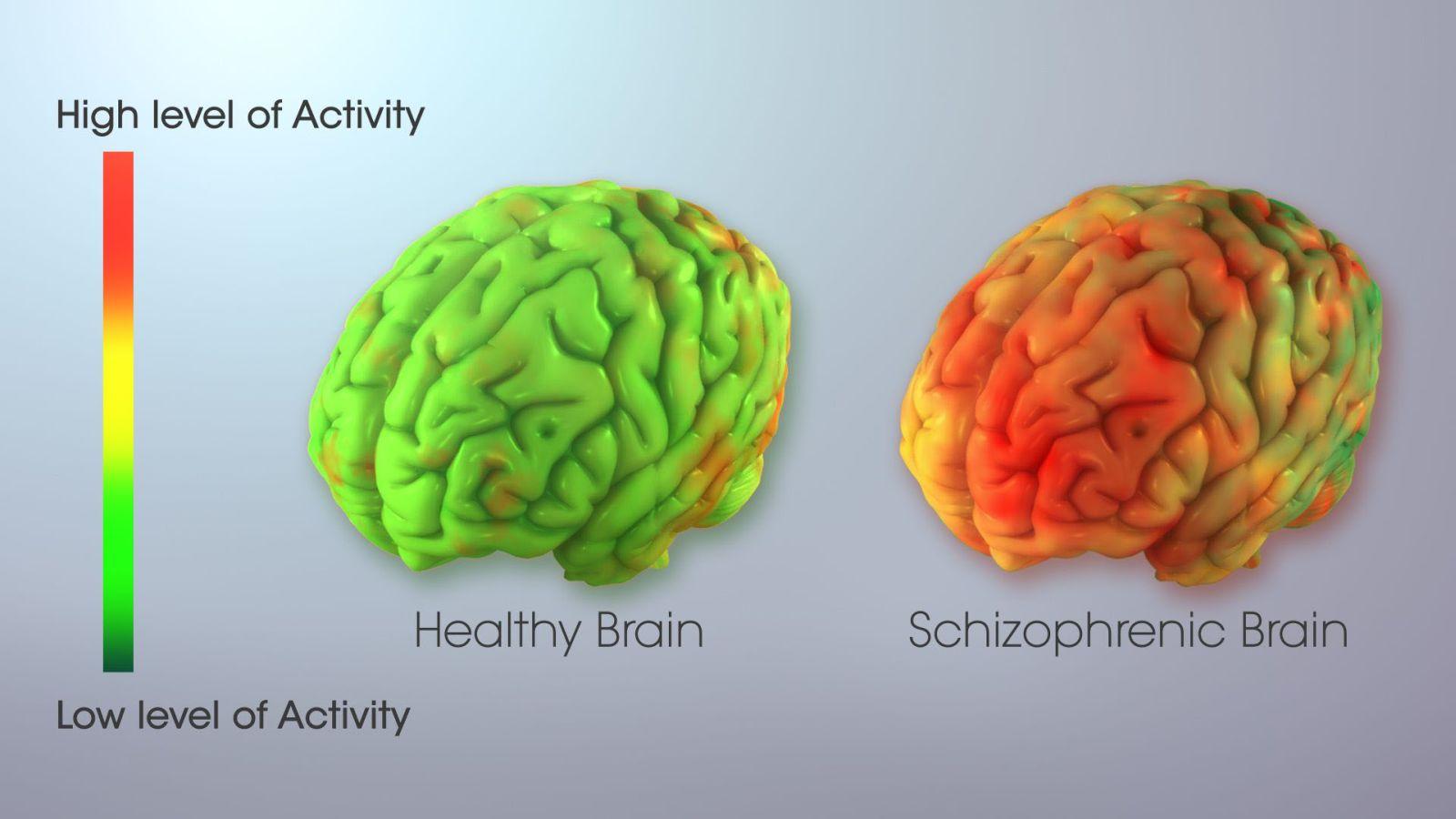 Mozek schizofreniků se odlišuje. Schizofrenici ztrácí kontakt s realitou.