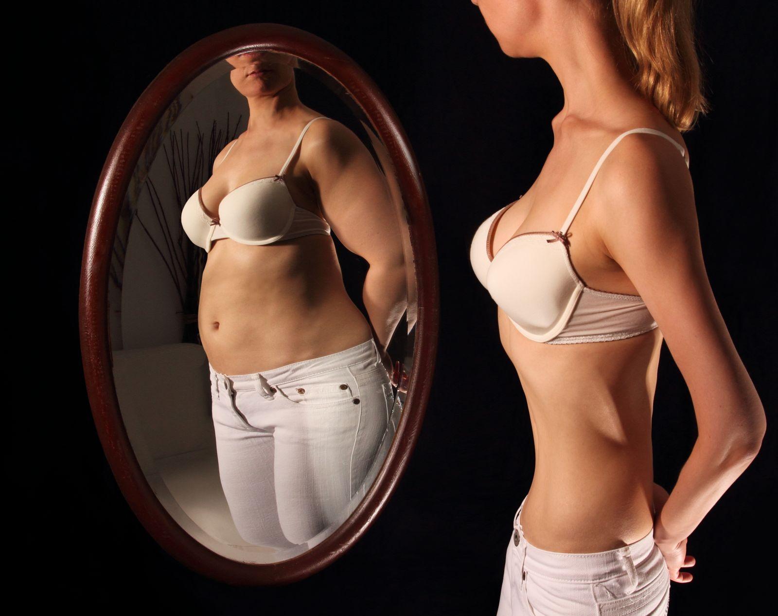 Nejhubenější žena na světě váží pouhých 27 kg a stále se jí nedaří se s váhou do normálu.