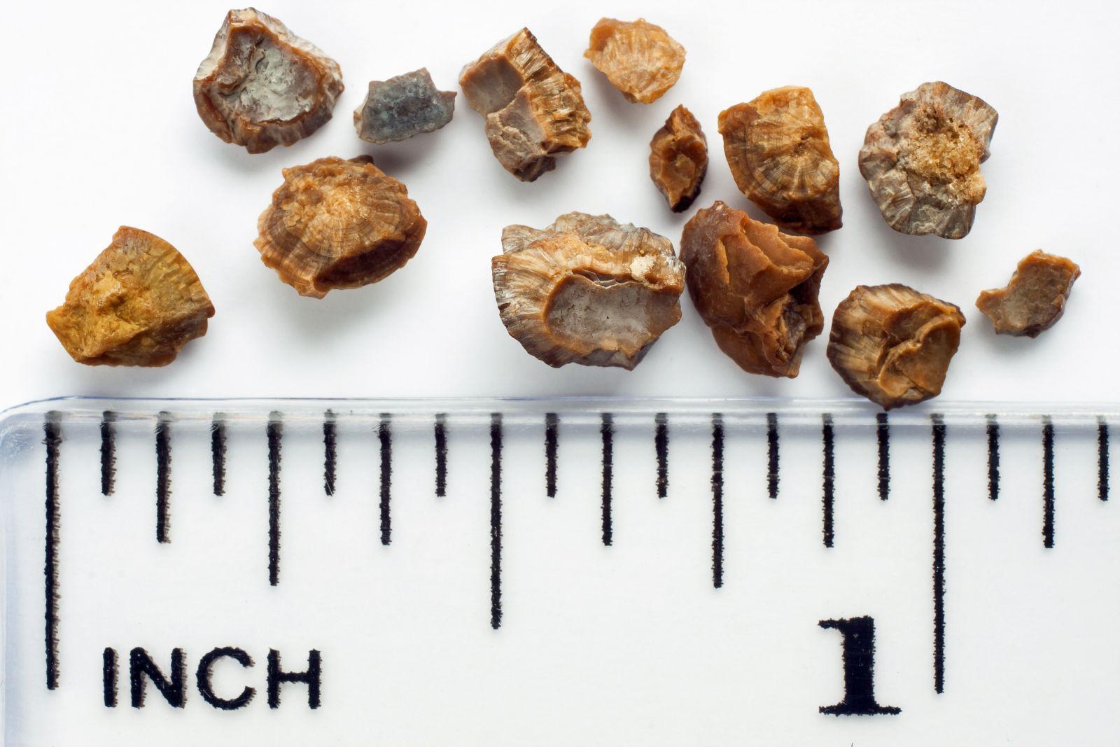 Kameny dorůstají až do velikosti několika centimetrů.