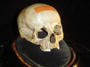 Zkoumaná lebka do záhady jasno nevnesla. Spíš naopak.