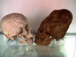 Při bližším porovnání s lidskou lebkou vykazují ty objevené v Peru anatomické odlišnosti, mozkovna je větší a těžší, jiná je i stavba týlu.