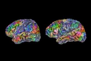 Vizualizace atlasu mozku, která ukazuje umístění výrazů v jeho jednotlivých částech