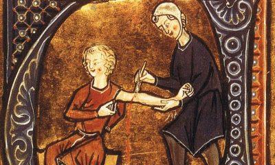 I když se to dnes zdá barbarské, bylo dříve pouštění žilou běžnou lékařskou praktikou.