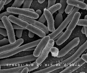 Bakterie Escherichia coli zvětšená v elektronovém mikroskopu.