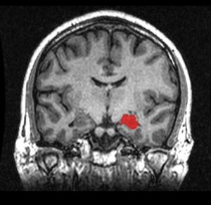 Umístění hipokampu v rámci skenu mozku pomocí magnetické rezonance.