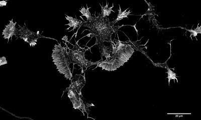 Při výzkumu použili vědci mozkové buňky krysy.