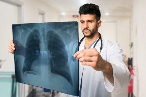Komplikace v podobě zápalu plic na sebe nemusí dlouho čekat.